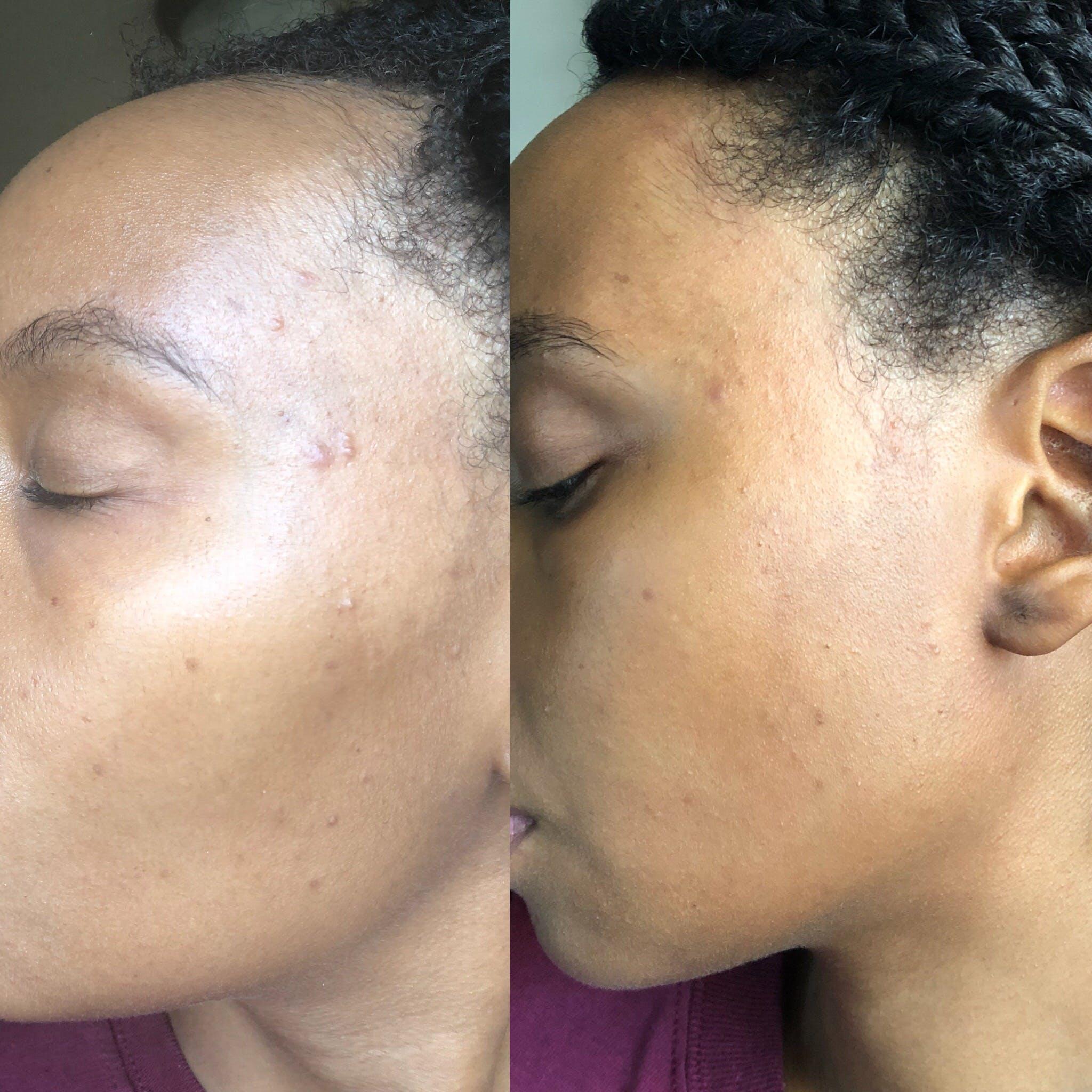 Citrus Peach - Glow Skin Brightening Face Scrub