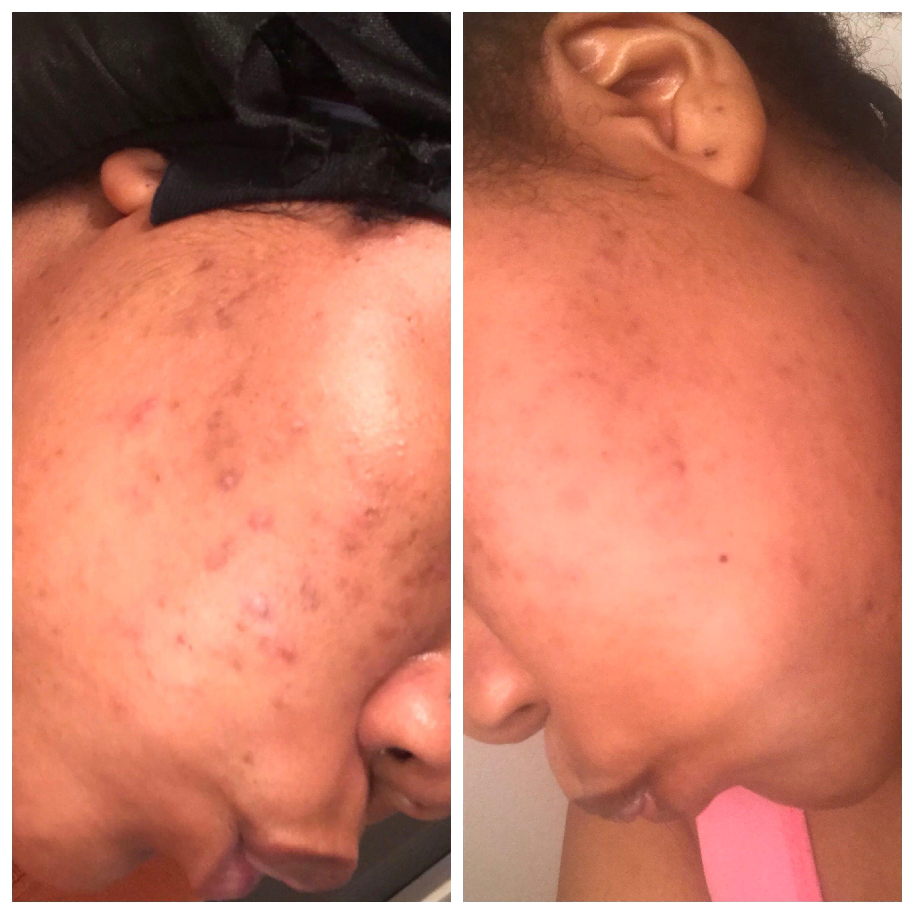 Glow Skin Brightening Face Scrub
