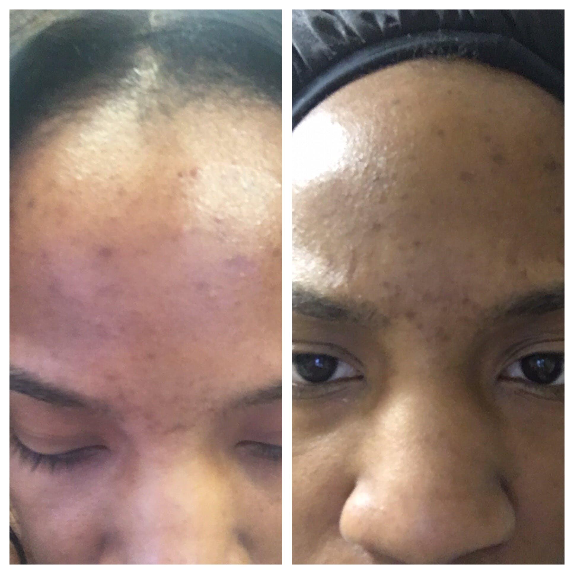 Flawless Charcoal Facial Scrub
