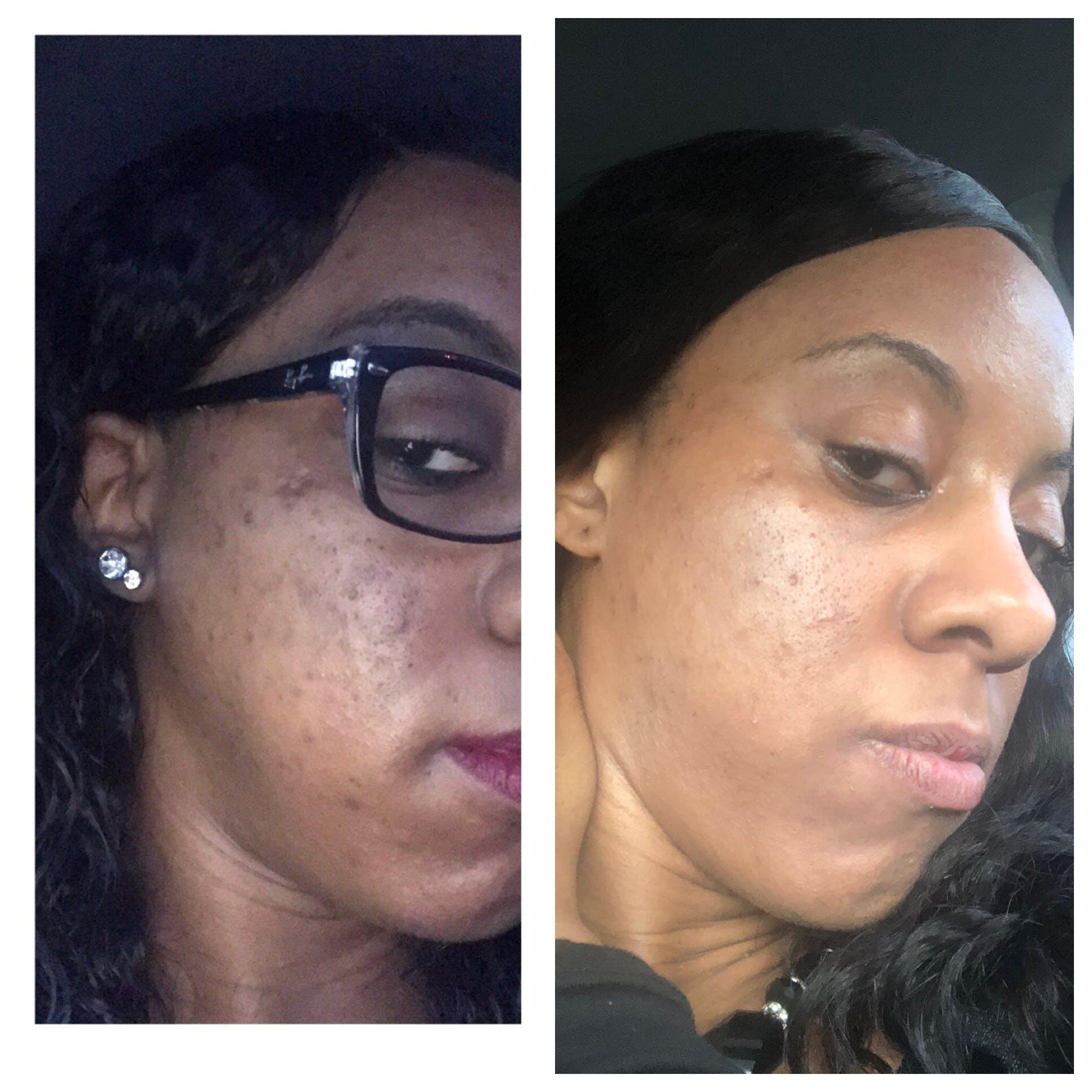 Balance Skin Brightening Toner