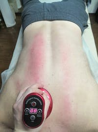Electric Cupping Massage Guasha Suction Scraping Massager Fat Removal