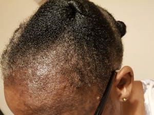 H.H Hair Follicle Stimulant - 100ml