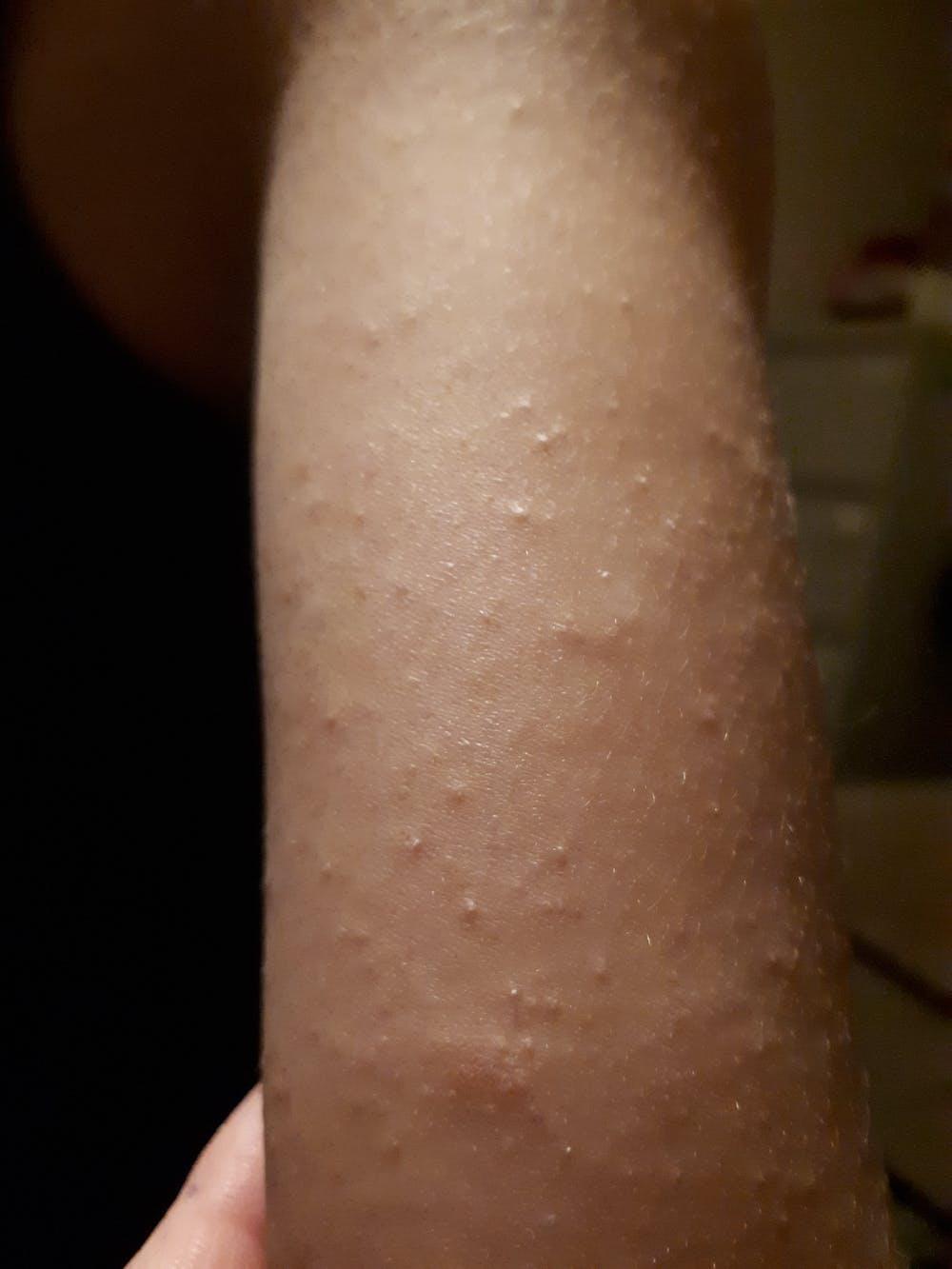 Био Вода от Маточина за кожни раздразнения и дерматит  - 200 мл