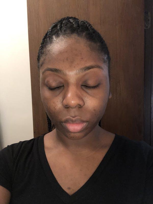 Glow Skin Brightening Face Scrub  Combo