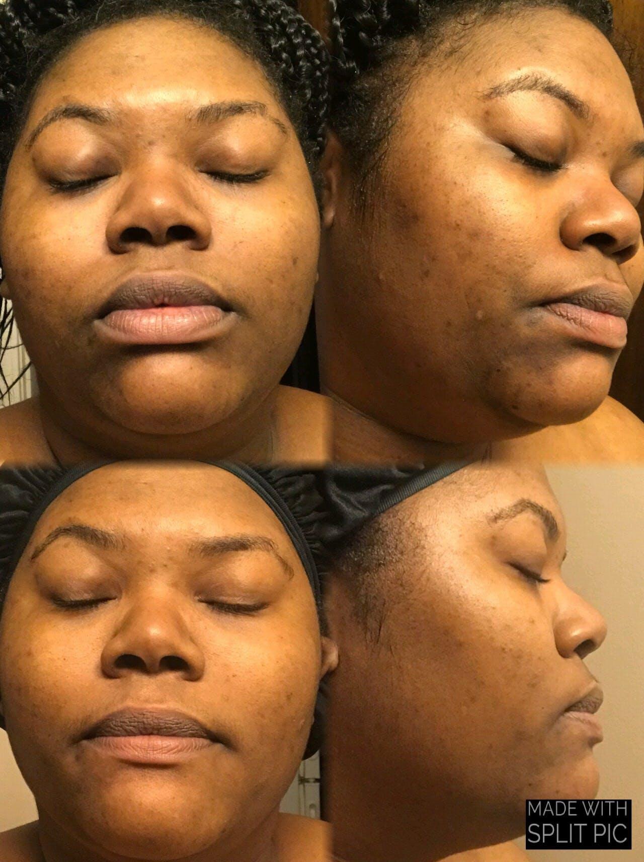 Glow Skin Brightening Facial Scrub