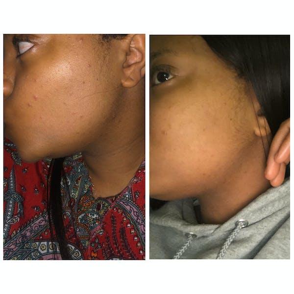 Glow Skin Brightening Face Scrub + Scrubbie Combo