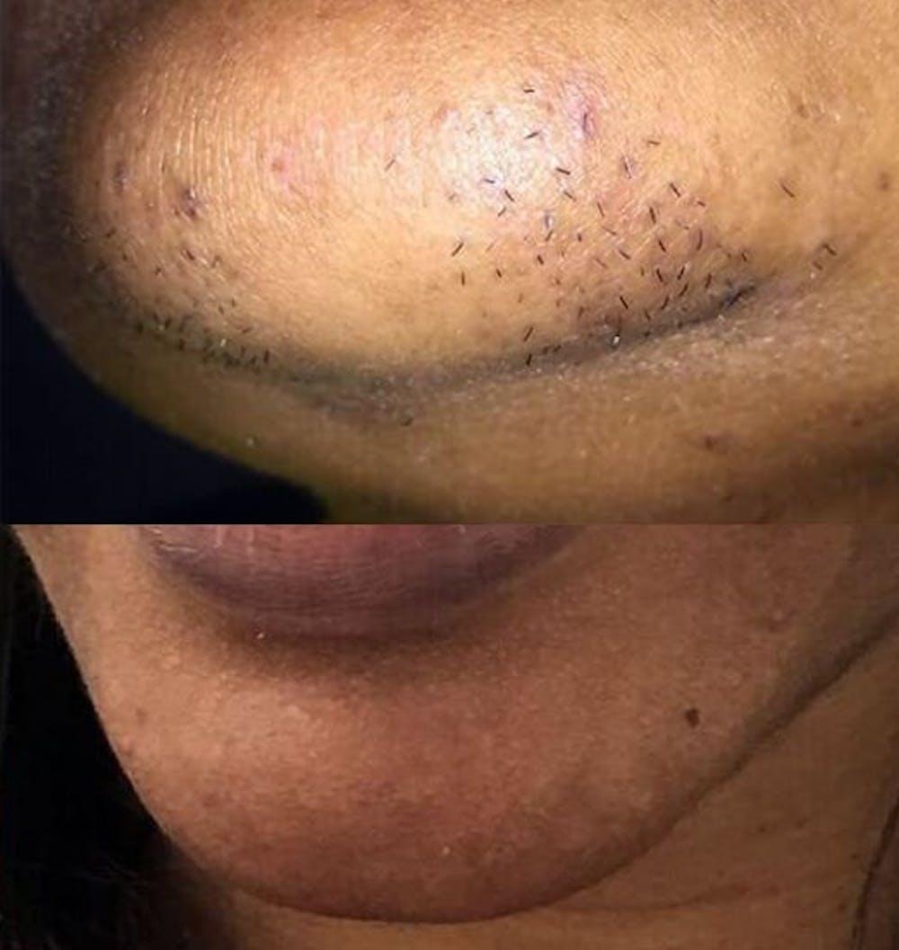 NEW Organic Face Mask Hair Removal (papaya, pineapple, turmeric)