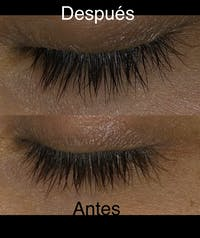 UKLASH SERUM DE PESTAÑAS