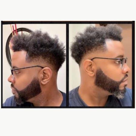 Root22Serum: Natural Hair Growth Serum