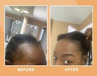 Vigor Roots Hair Serum