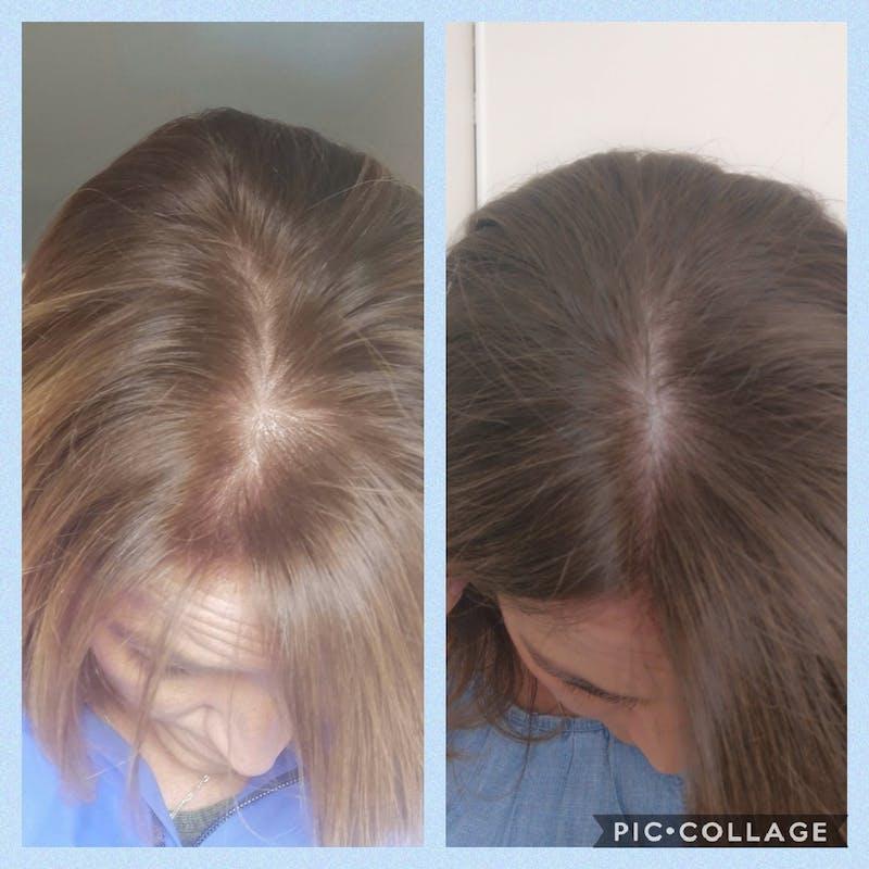 GrowPro - Hair Vitamins with nail growth formula & Vitamin D
